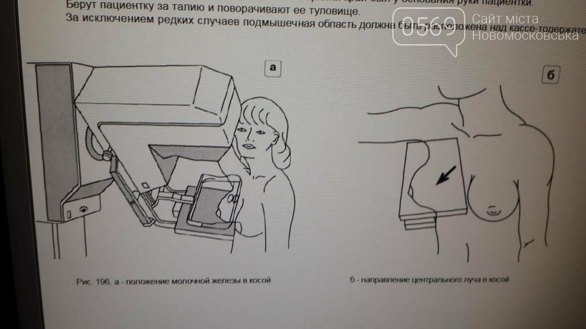 Работает ли новомосковский маммограф?, фото-4