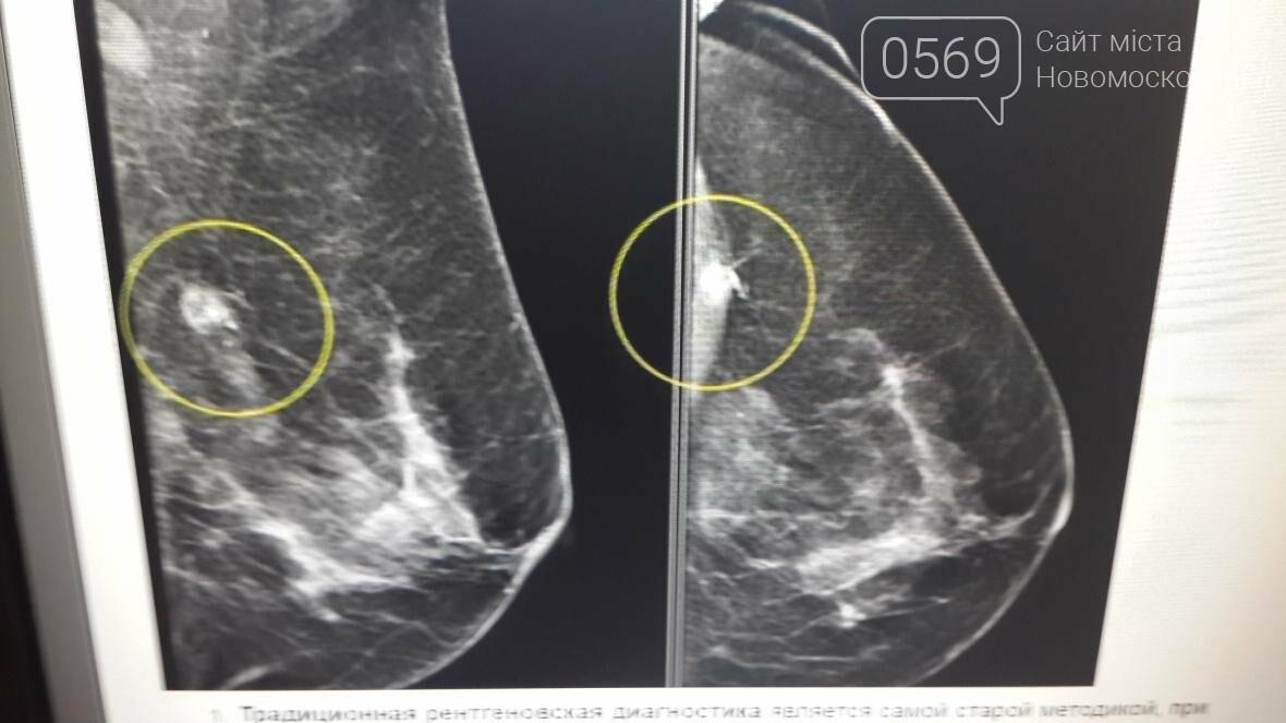 Работает ли новомосковский маммограф?, фото-5