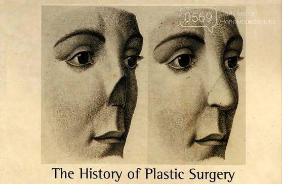 Хирург Джозеф Карпю провел первую в Европе пластическую операцию  , фото-1